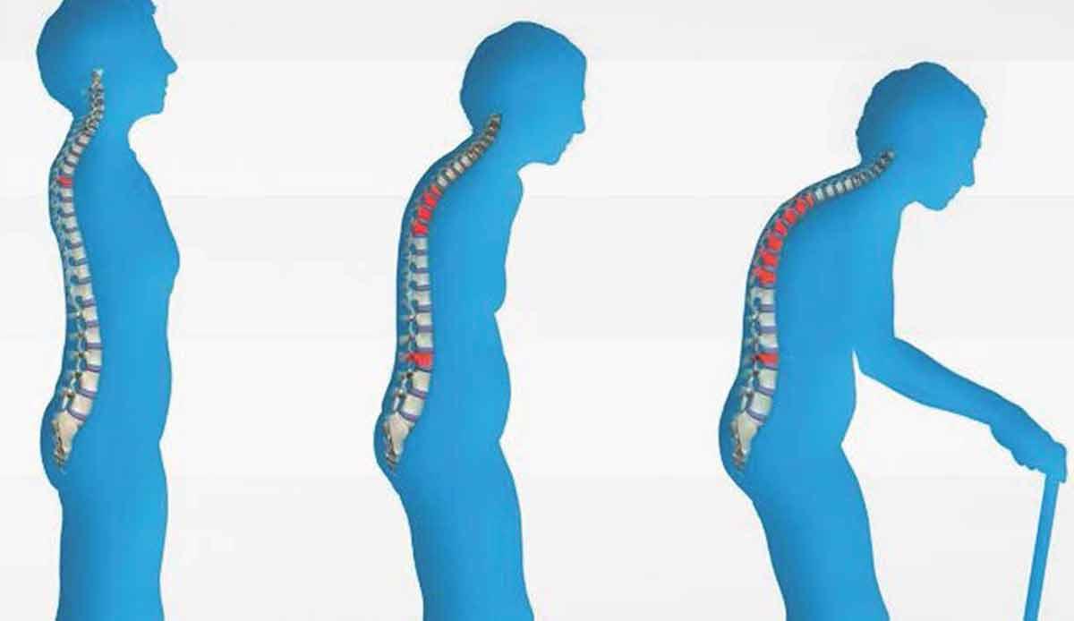Osteoporosis-web